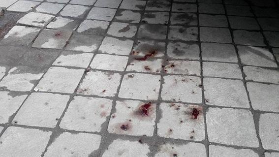 """""""Жизнь или колбаса?"""" В Одессе охрана жестоко наказала мелкого воришку"""