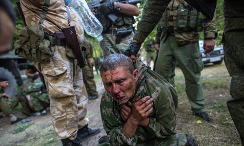 Отрубили пальцы... [выкололи] глаз... Комендант лично отрезал часть мизинца. Сажали на стол и били молотками по коленям, — з рапорту про злочини путінців на Донбасі