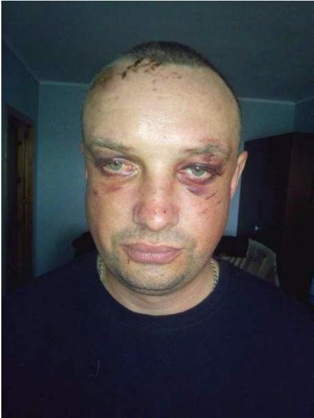 """Бойцы АТО на блокпосту """"повязали"""" пьяных сбушников"""
