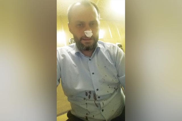 В Москве совершено нападение на депутата Романа Мирошниченко